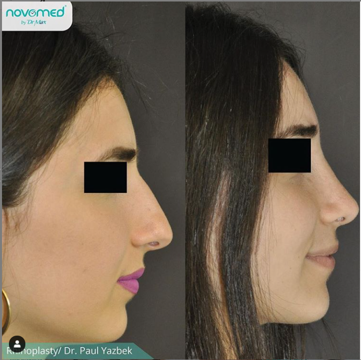 rhinoplasty dr paul