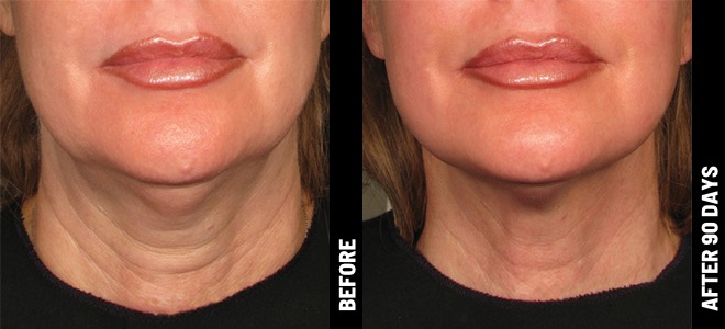 Before and After Cheek